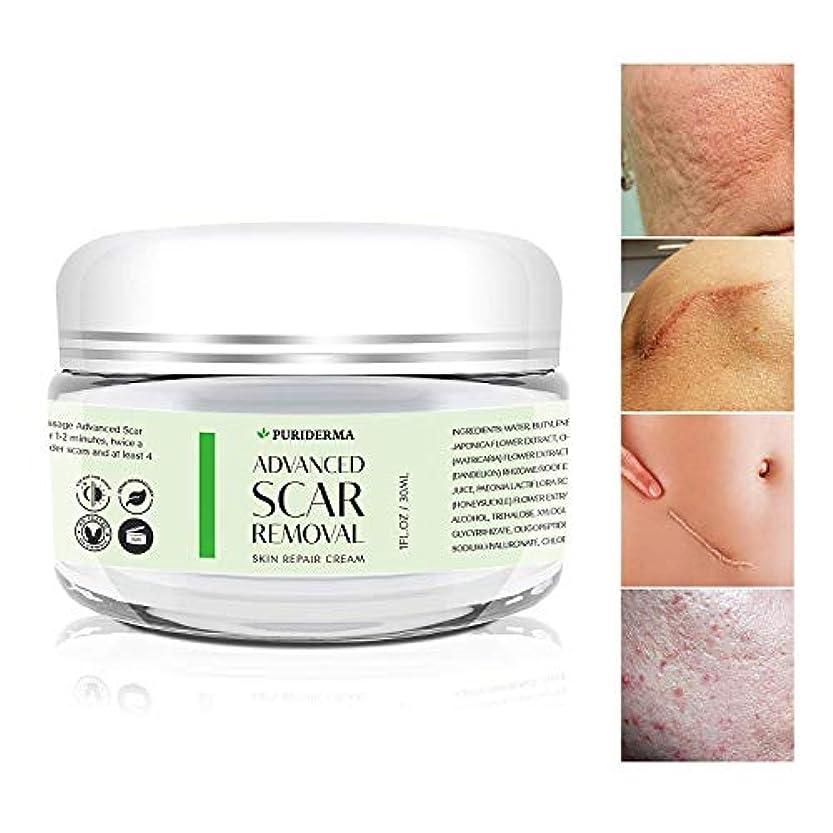 宇宙飛行士マイナー忘れられないPuriderma 社 の Advanced Scar Removal Cream (30 ml) 妊娠線 や 傷跡 修復に Advanced Treatment for Face & Body, Old & New Scars...