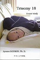 Trisomy 18―a case study