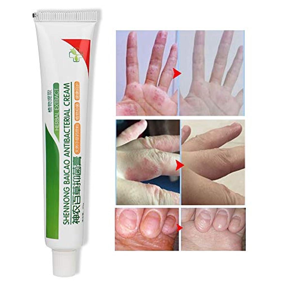 空洞増幅する銅皮膚軟膏のリペアクリームリリーフ掻uri症皮膚アレルギー蚊かみ傷乾燥ひび割れ皮植物クリーム20g