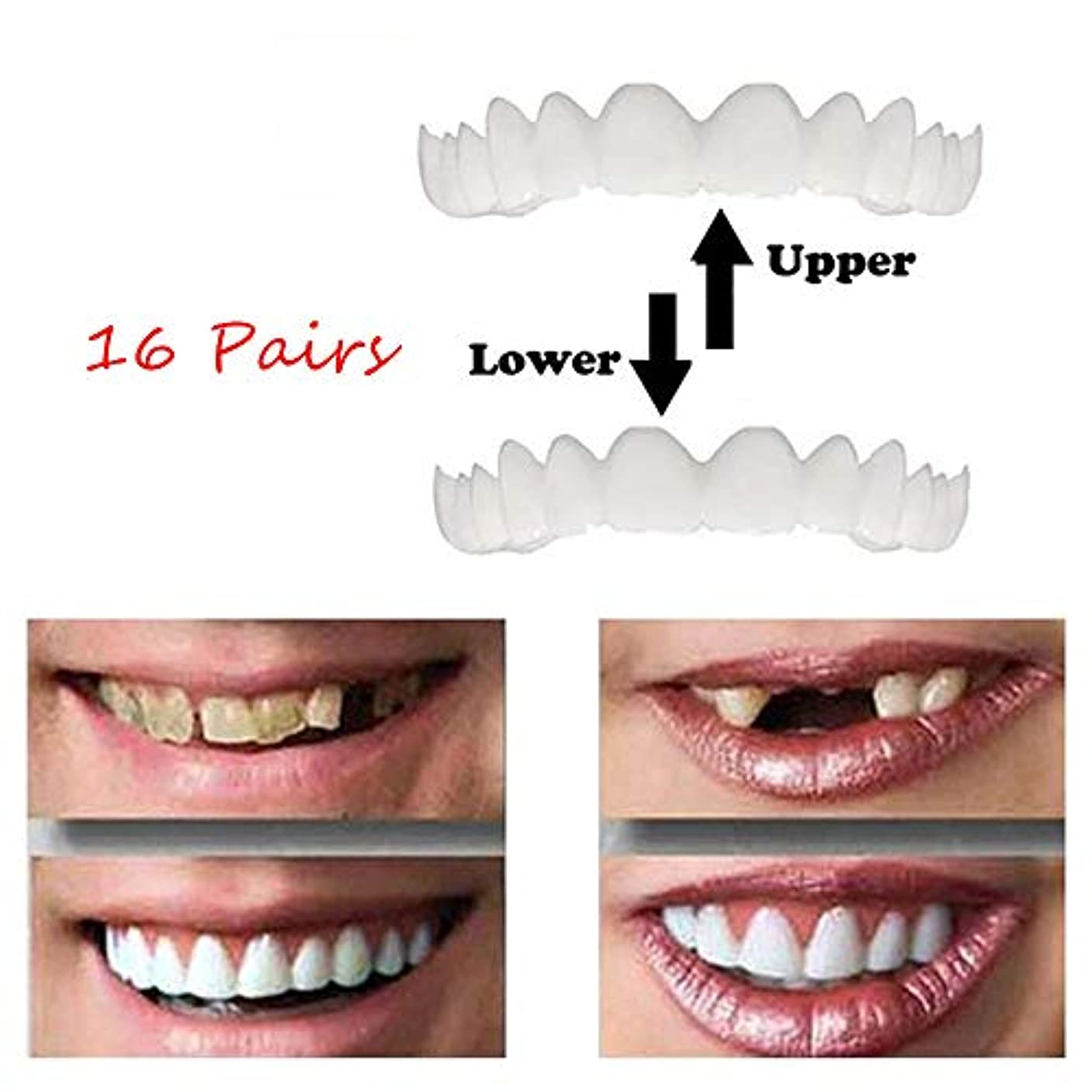 飛躍上へ甘やかす2組上下義歯歯用化粧品一時的な笑顔コンフォートフィット化粧品義歯(エネルギークラスA),16Pairs