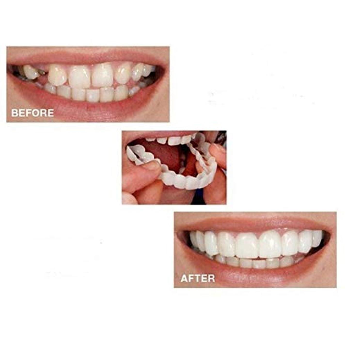トピック華氏害虫歯のベニアの6ペアは即座パーフェクトサスペンダー美白カバリング不規則な、ステンドグラス、行方不明ひび割れた歯にクリップされたスマイル
