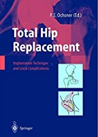 Total Hip Replacement: Implantation Technique and Local Complications