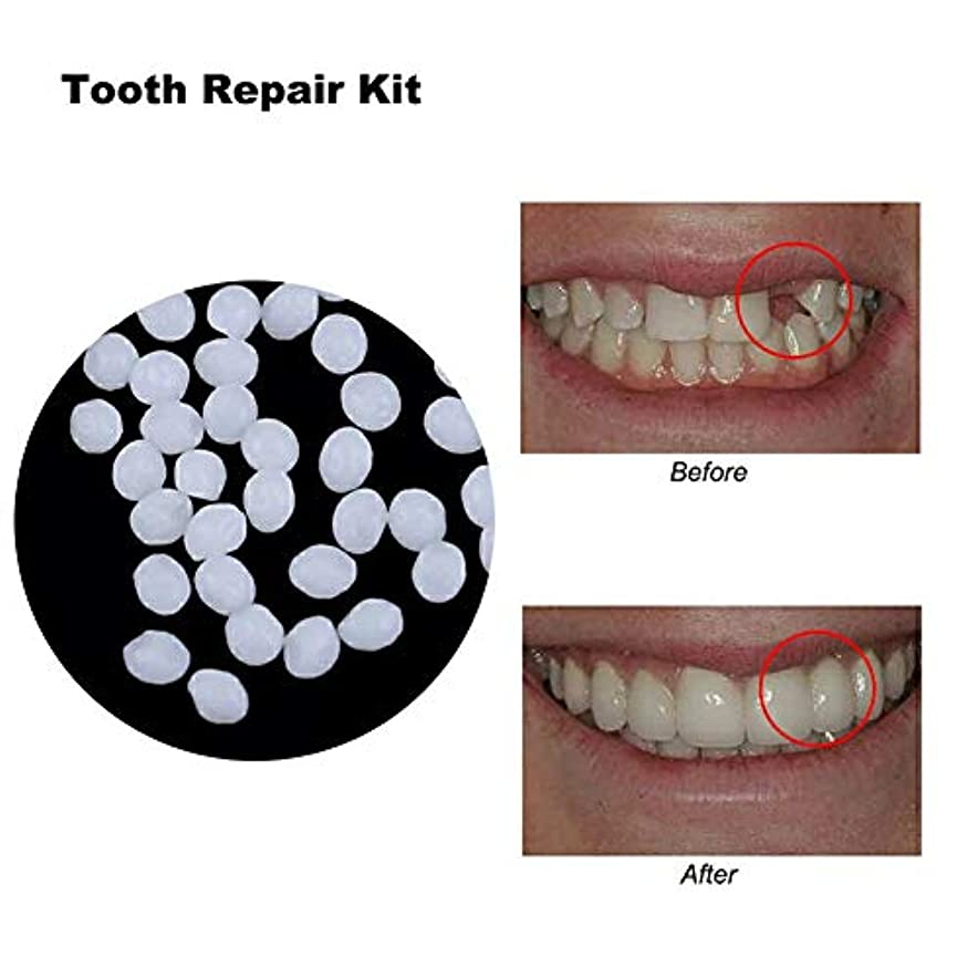 のれん暴動好意偽歯固体接着剤、樹脂の歯とギャップのための一時的な化粧品の歯の修復キットクリエイティブ義歯接着剤,10ml14g
