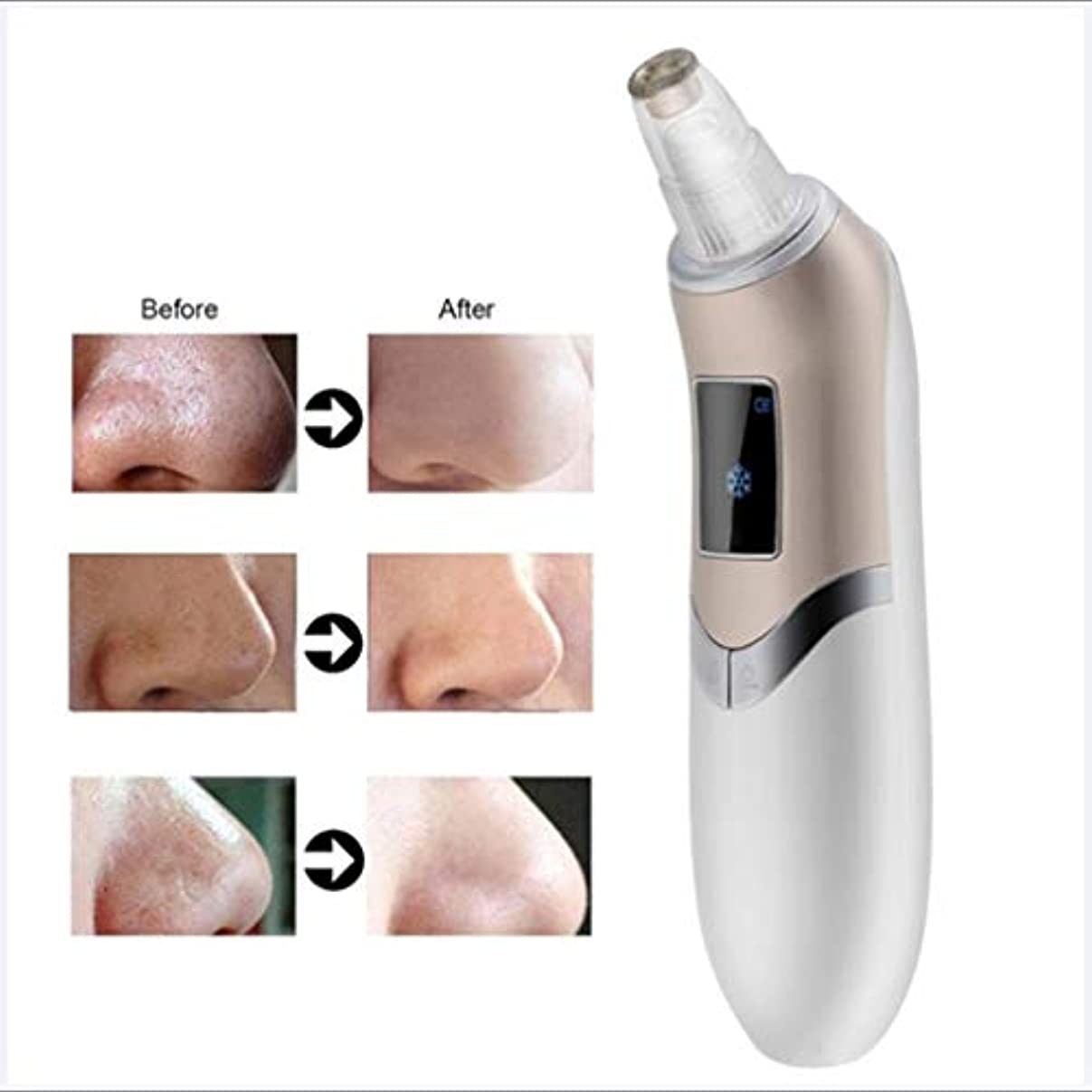スイッチ寝室強調する洗顔料 - にきび掃除機 - 電気にきびマイクロダーマブレーション - 美容