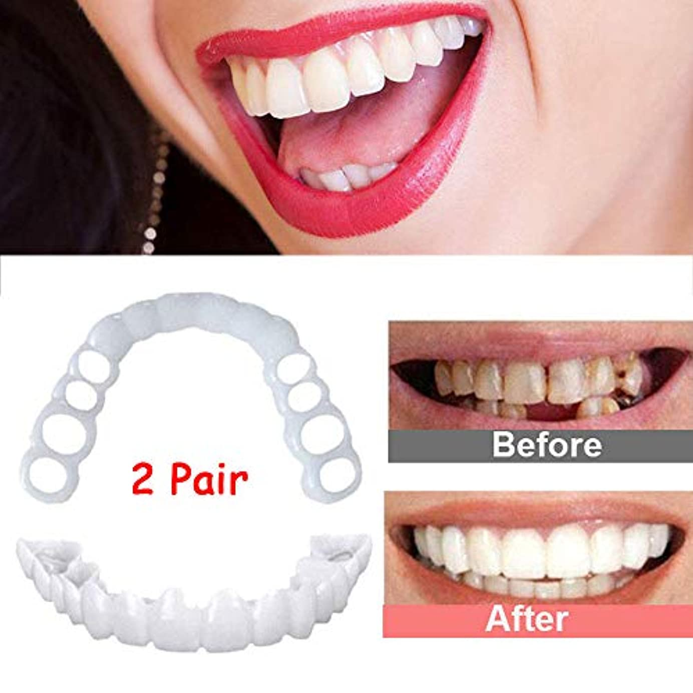 オリエンタル午後チームパーフェクトスマイルの2ペアの再利用可能なスナップが数分でホワイトニング義歯フィットフレックス化粧品の歯快適なベニヤカバーデンタルケアアクセサリーボックス付き