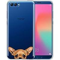 "Huawei Honor v10/ビュー106""ケース、Finciboクリア透明Tpuシリコンプロテクターカバーソフトジェルスキンfor Huawei Honor v10/ビュー106インチ、ブラックタンRottweiler Dog HWV10-SKCASO0075-F-A4352"
