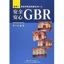 図解!  遅延型吸収性膜を用いた 安全安心GBR