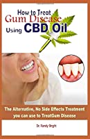 How to Treat Gum Disease Using CBD oil: The Alternative No Side Effects Treatment you can use to  Treat Gum Disease