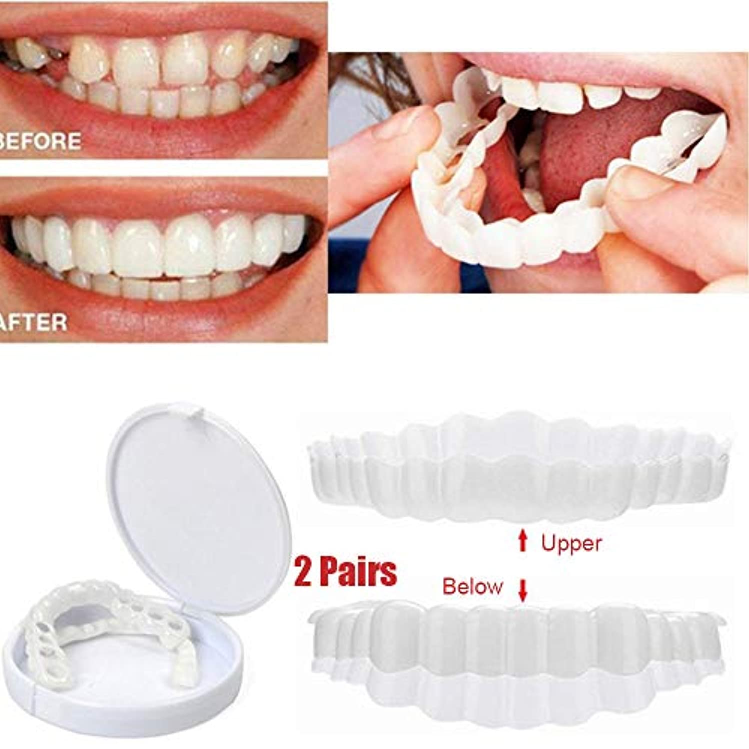 後継あたりポーター2ペア化粧品歯一時的な笑顔ホワイトニング歯インスタント快適な義歯化粧歯快適な柔軟な歯カバーコレクターパーフェクトスマイルシミュレーション付きボックス