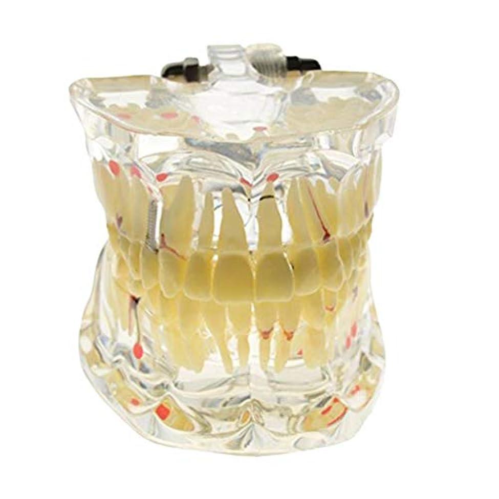 泥棒アフリカ人台無しにHEALIFTY 脱着可能な口腔モデル着脱可能な歯科インプラント歯モデル歯ティーチングモデル