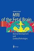 Mri of the Fetal Brain