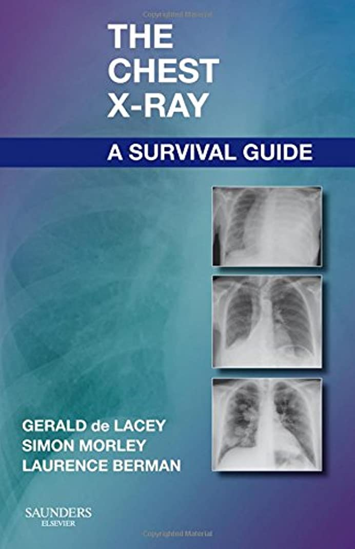 食事を調理する飾る酸化するThe Chest X-Ray: A Survival Guide, 1e