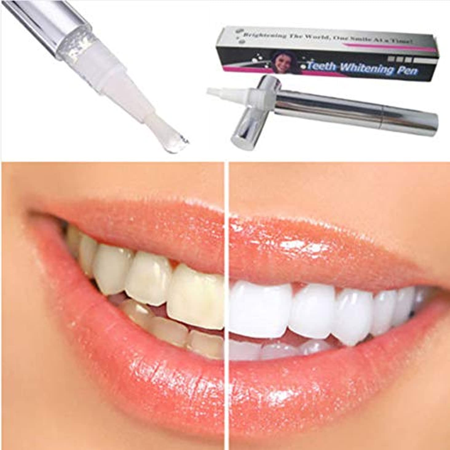 十一によるとブランクホワイトニングペン型真っ白な歯 ホワイトニングペン 歯の白い漂白剤 瞬間汚れ消しゴムリムーバー