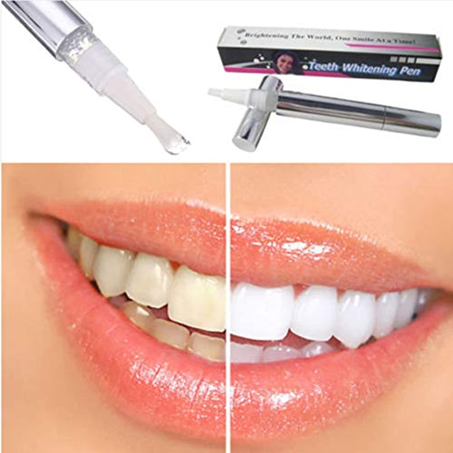 リテラシーネイティブ展開するホワイトニングペン型真っ白な歯 ホワイトニングペン 歯の白い漂白剤 瞬間汚れ消しゴムリムーバー