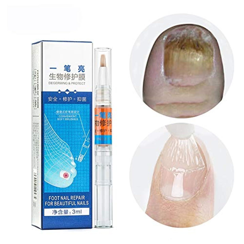 服を洗う煙ゲート爪の治療爪真菌症液、抗真菌ネイル液、Shemaan抗真菌ハンドフットケア爪の再生を修復および変色から保護
