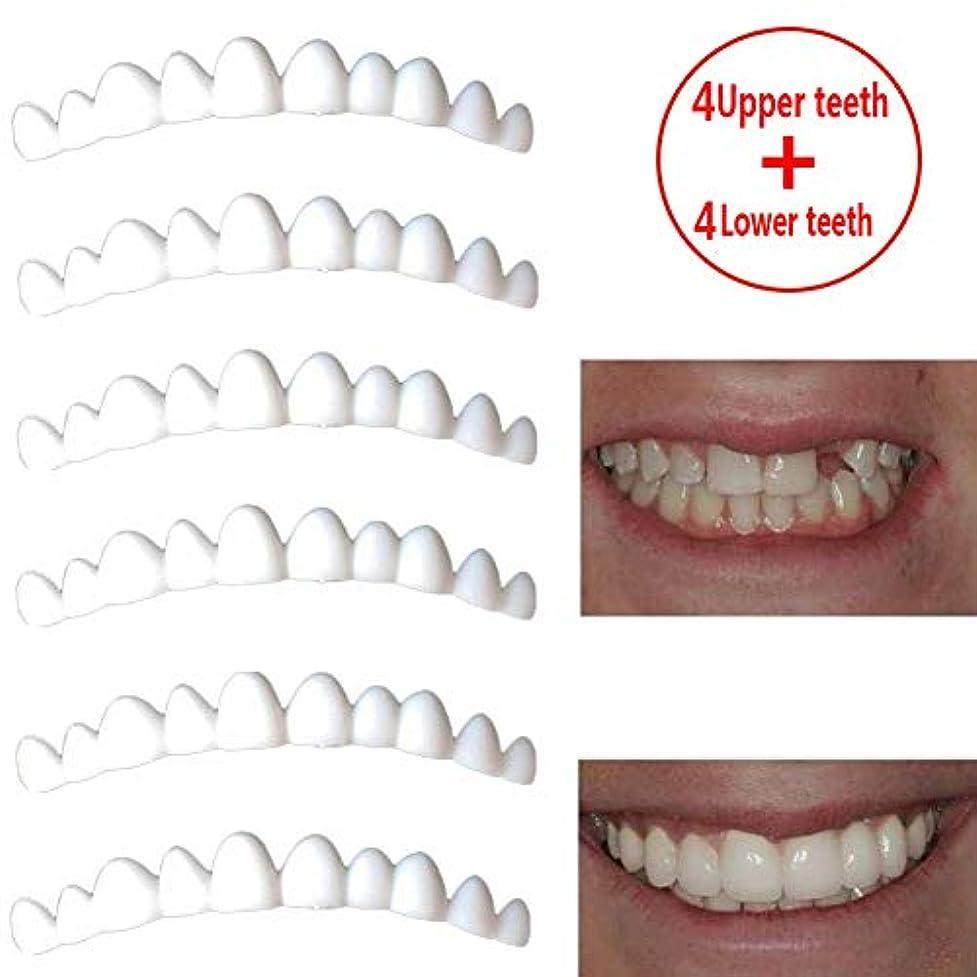 苛性パッチ以下4ペア化粧歯、コンフォートフィットフレックス上歯下歯セット