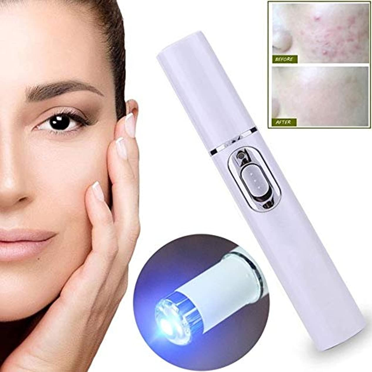 頼むファーム飲み込むにきび治療とにきび跡治療のための美容ライトセラピーデバイス、にきびを削除し、しわほくろダークスポット除去機を削減します