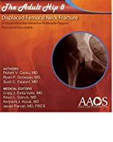 The Adult Hip 8 : Displaced Femoral Neck Fracture [並行輸入品]