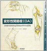 変形性関節症(OA)