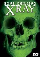 DF BONE CHILLING X-RAY DVD