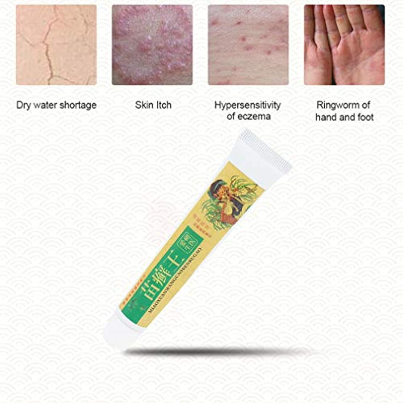 アンデス山脈小道校長草のかゆみ止めのクリームの医学の皮膚炎の処置ボディスキンケア