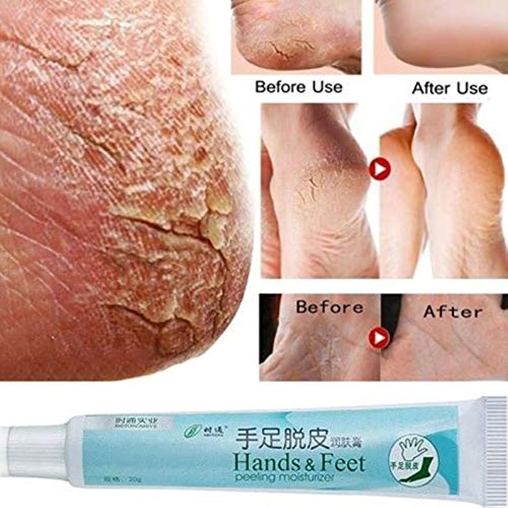 先生不確実動詞フットクリーム FidgetFidget ラフな乾燥&ひびの入った足の皮膚のための足の手ひびの入ったヒールのバームクリーム