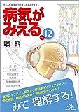 病気がみえる vol.12 眼科 メディック メディア メディックメディア