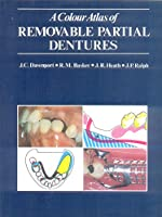 A Colour Atlas of Removable Partial Dentures