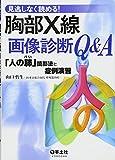 見逃しなく読める!胸部X線画像診断Q&A―「人の肺」読影法と症例演習