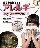 アレルギーってなに? (きちんと知ろう! アレルギー)