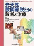 先天性股関節脱臼の診断と治療