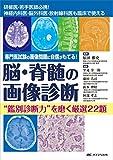 """脳・脊髄の画像診断 """"鑑別診断力""""を磨く厳選22題: 専門医試験の画像問題に自信がもてる!"""