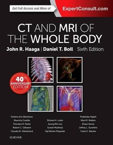 Download CT and MRI of the Whole Body, 2-Volume Set, 6e (Else04) 0323113281