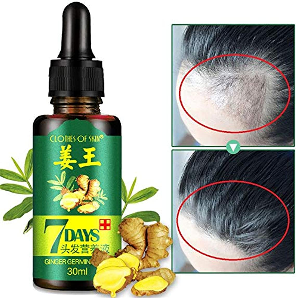 感嘆スペインホールドFBYED 30ml 漢方薬 フォーミュラ 育毛液 江王 髪の毛 栄養ソリューション ソリッドヘア 髪の成長 スピリット用品 アンチオフ