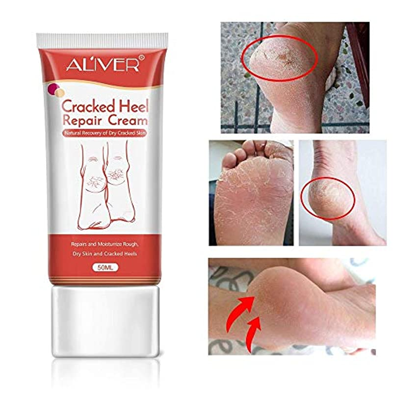 認める懲戒ひもCracked Heel Cream, Foot Moisturizer, Foot Callus Remover Foot Skin Whitening Repair Cream, Softens And Intensively...