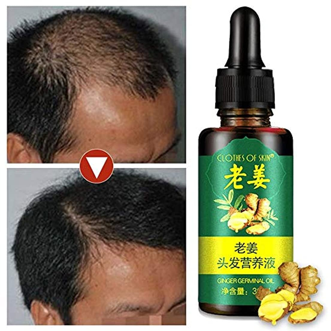 マージ抜け目のないひどく男性と女性のための新しいジンジャー胚油脱毛治療エッセンシャルオイル脱毛治療30 ml