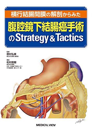 横行結腸間膜の解剖からみた 腹腔鏡下結腸癌手術のStrategy & Tactics