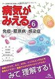 病気がみえる 〈vol.6〉 免疫・膠原病・感染症 (Medical Disease:An Illustrated Reference)