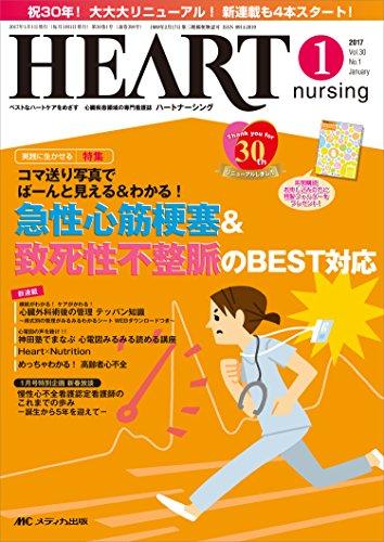 ハートナーシング 2017年1月号(第30巻1号)特集:コマ送り写真でばーんと見える&わかる!  急性心筋梗塞&致死性不整脈のBEST対応の詳細を見る