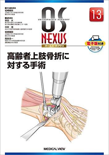 高齢者上肢骨折に対する手術 (OS NEXUS(電子版付き) 13)