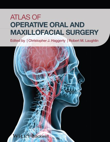 Download Atlas of Operative Oral and Maxillofacial Surgery 1118442342