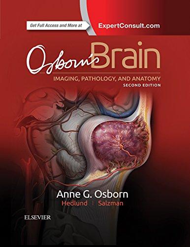 Osborn's Brain E-Book