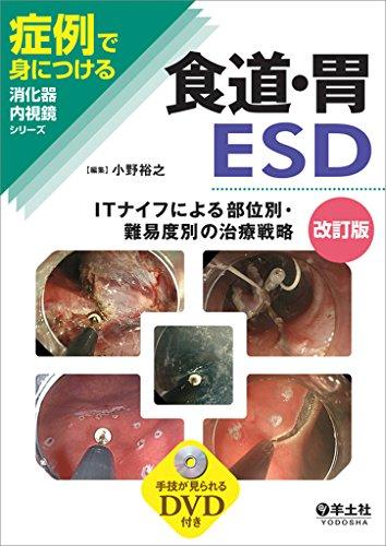食道・胃ESD改訂版〜ITナイフによる部位別・難易度別の治療戦略 (症例で身につける消化器内視鏡シリーズ)