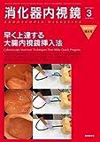 消化器内視鏡第26巻3号増大号 早く上達する大腸内視鏡挿入法 (消化器内視鏡2014年3月増大号)