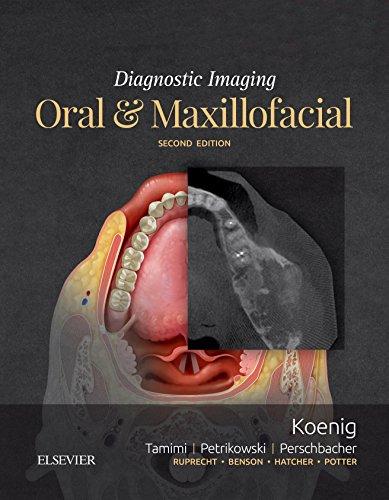 Diagnostic Imaging: Oral and Maxillofacial E-Book