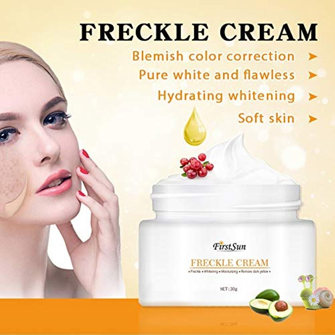 進捗消す頬Lucoss 顔のそばかす除去クリーム、顔の美白クリーム、保湿、メラニンを明るく、肌の色を明るく