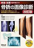 救急・当直で必ず役立つ! 骨折の画像診断 改訂版〜全身の骨折分類のシェーマと症例写真でわかる読影のポイント