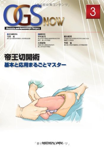 帝王切開術−基本と応用まるごとマスター (OGS NOW 3)