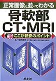 正常画像と並べてわかる骨軟部CT・MRI―ここが読影のポイント