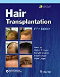 Hair Transplantation (English Edition)
